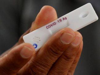 COVID-19: ¿cómo son los test rápidos de antígenos?