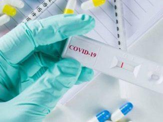El novedoso test de anticuerpos español para detectar la Covid