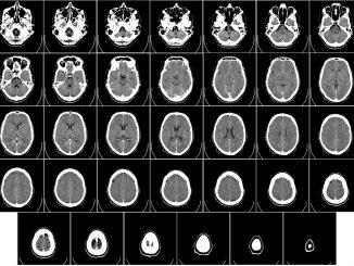 Científicos españoles hallan tratamiento contra el tumor cerebral