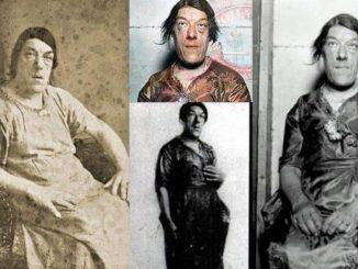 La historia de Mary Ann Webster, la mujer más fea del mundo debido a una enfermedad