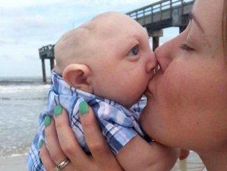 La historia de Jaxon Buell: adiós al niño con microcefalia