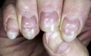 La aparición de líneas en las uñas serían señal de haber tenido Covid