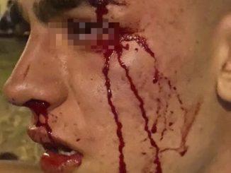Un joven de 17 años, víctima de la última agresión homofóba en Valencia