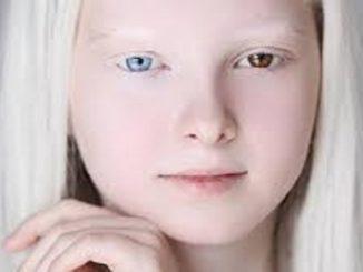 El albinismo y la heterocromía en la misma persona causan una belleza inusual