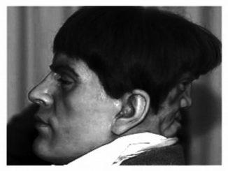 Edward Mordake, el cuerpo como infierno personal: la triste historia del hombre de las dos caras