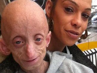 Reino Unido, joven de 18 años muere por envejecimiento prematuro: la enfermedad de 'Benjamin Button'