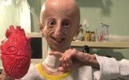 Sammy Basso, el biólogo que lucha por frenar su envejecimiento acelerado