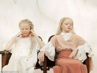 las gemelas albinas que se convirtieron en modelos