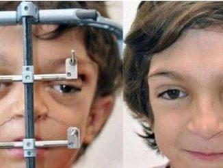 Un raro síndrome llamado Crouzon le desfiguró la cara al nacer