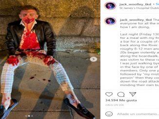El taekwondista sufrió una brutal agresión en su Irlanda natal