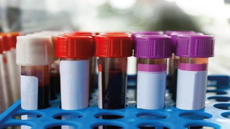 muestras de sangre covid-19 China